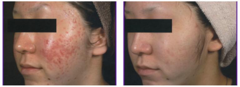 Female MicroLaser™ Peel