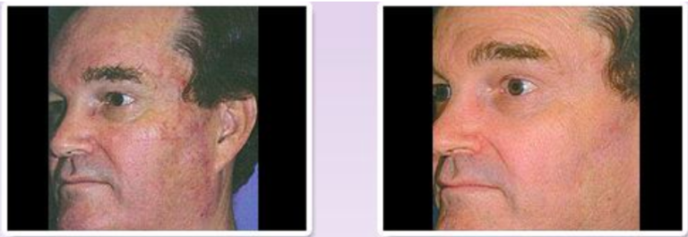 Male MicroLaser™ Peel